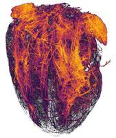 20. koht. Hiire südame veresooned pärast infarkti, (2X suurendus).