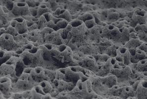 Tsinkoksiidi nanoosakesed pidurdavad titaankruvi peal bakterite kasvu, (Poola).