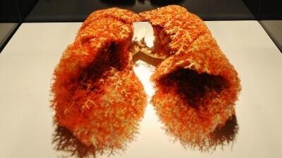 Tsüstiline fibroos kahjustab hingamiselundeid