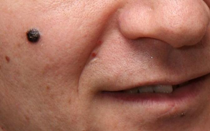 Melanoom on naha pigmentkasvaja