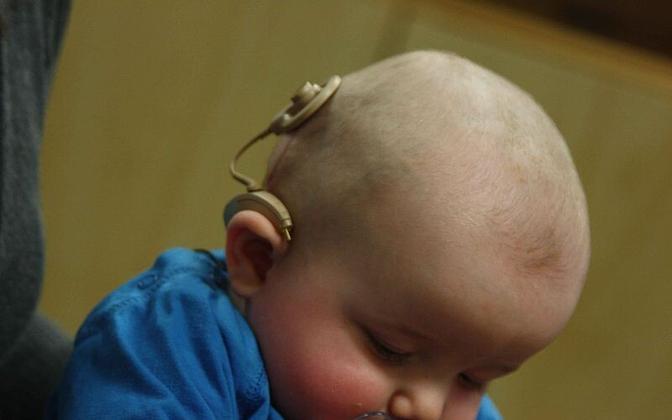 Kõrvaimplantaat