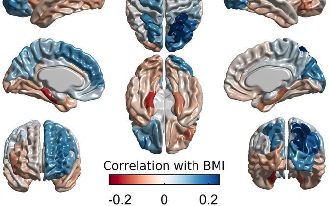 Ajukoore paksuse seosed kehamassiindeksiga. Sinistes piirkondades on seos kehamassiindeksi ja ajukoore paksuse vahel positiivne, punastes negatiivne.
