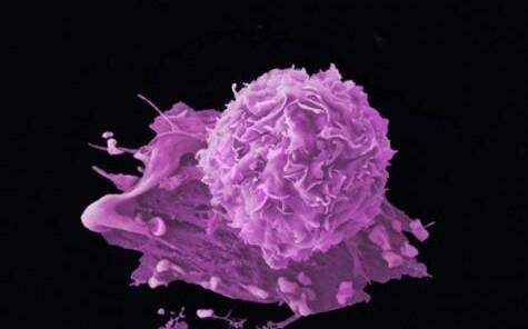 Teadlased uurisid ülipõhjalikult ligi 2700 kasvaja DNA-d.