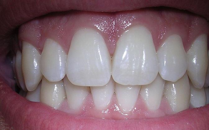 Enamasti on parodontiit alguse saanud puudulikust suuhügieenist ja valedest hügieenivõtetest.