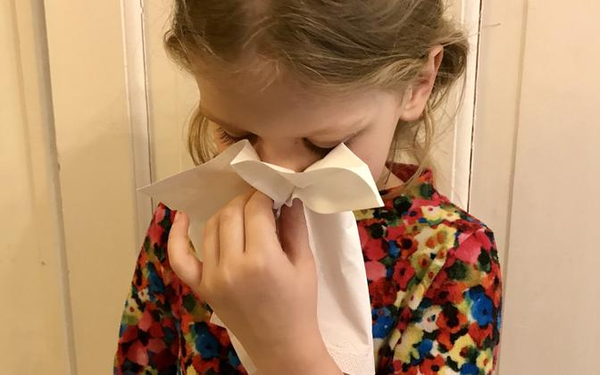 A runny nose.